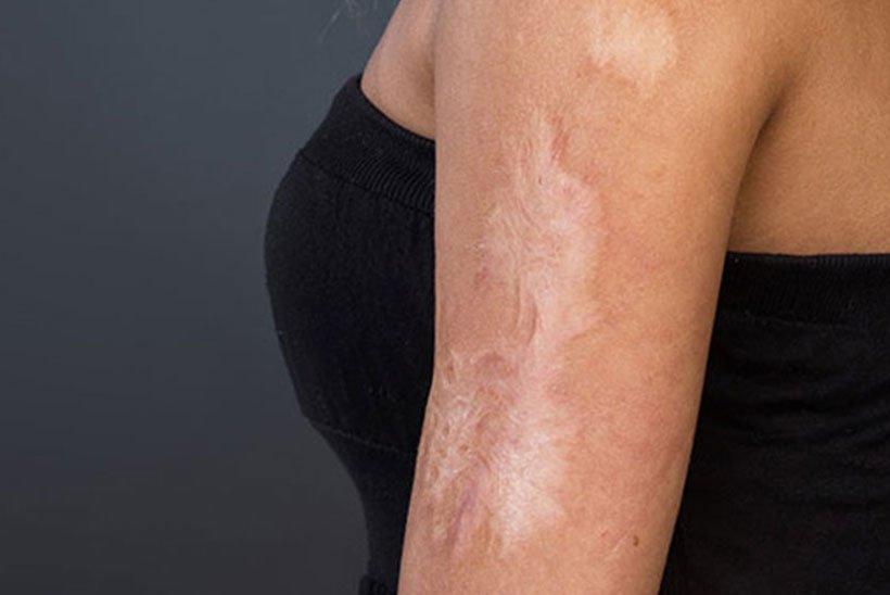 How do scars form? POSAS